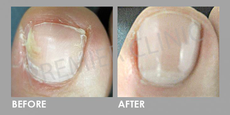 Before & After Nail Fungal Infection Laser