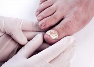 Nail Fungal Infection Laser
