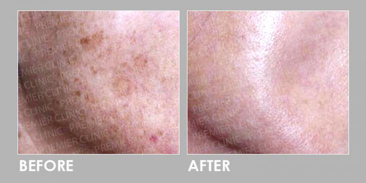 Before & After Obagi Medical Grade Skincare