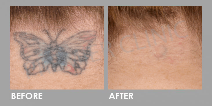 Before & After PICO Laser