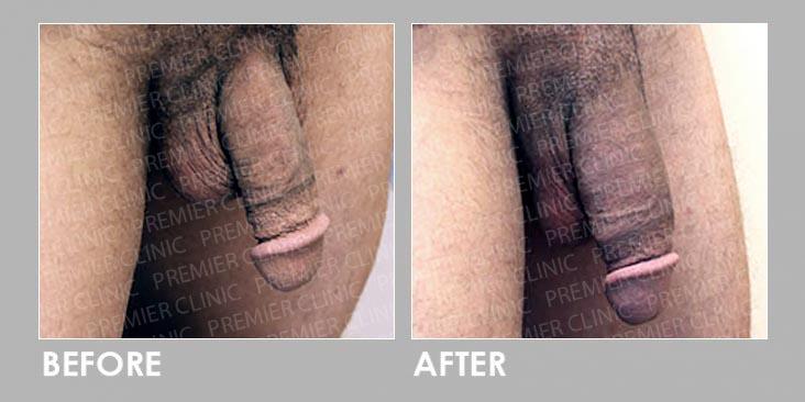 Before & After Penis Enlargement Treatment