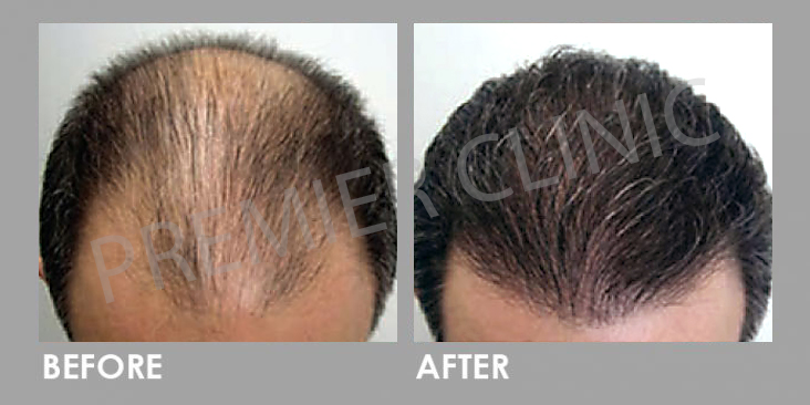 Before & After Premier Signature Hair Growth Laser