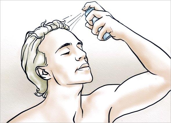 Regro (Minoxidil) Spray