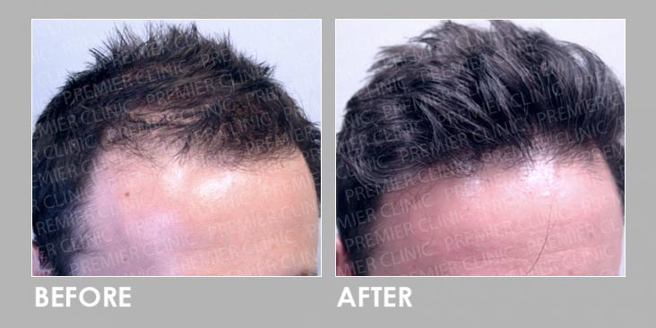 Before & After Finasteride Oral & Regro Spray