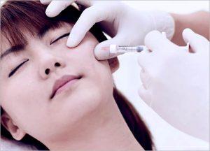 Radiessse Filler Injection