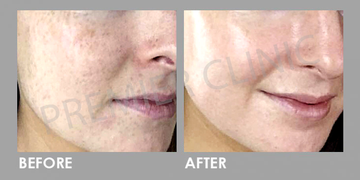 Before & After Rejuran Healer Treatment