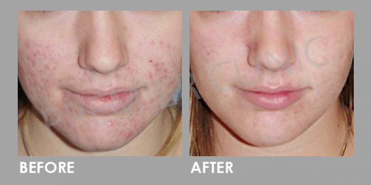 Before & After Silkpeel Dermalinfusion