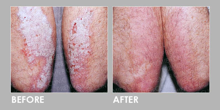 Before & After Skin Fungal Infection Laser
