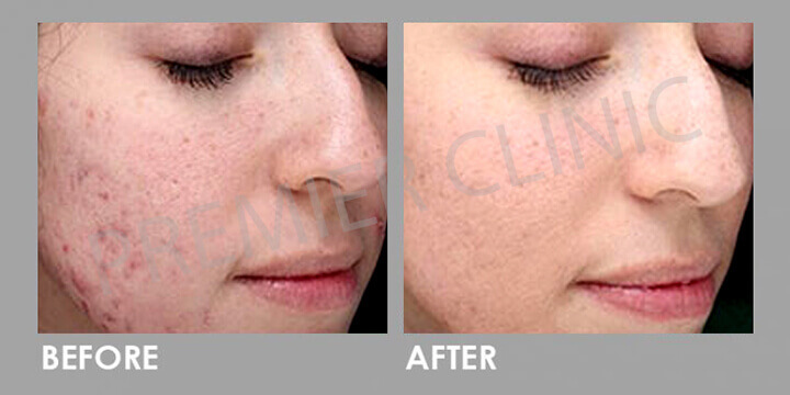 Skin Peel - Before & After 02