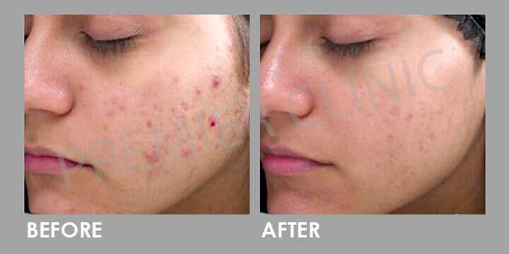Skin Peel - Before & After 03