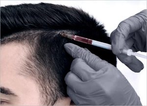 Stem Cell Hair Treatment
