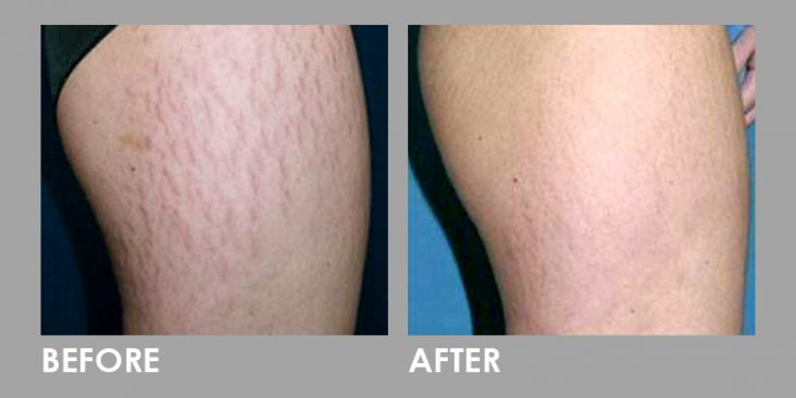 StretchMarks_Before After