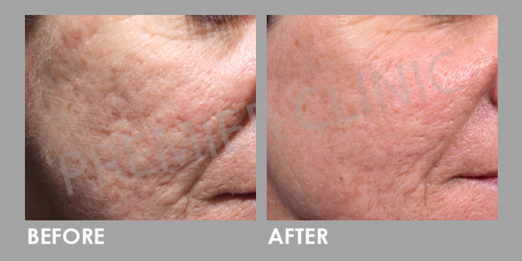 Before & After Subcision Skin Resurfacing Treatment