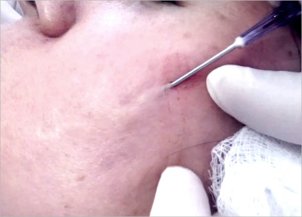 Subcision Skin Resurfacing Treatment