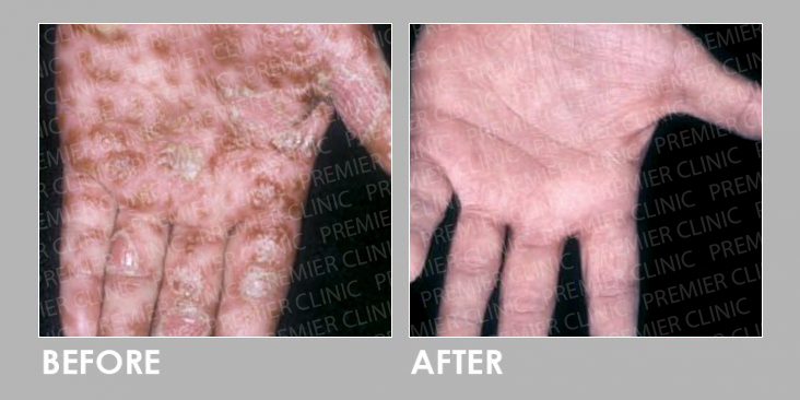 UVB Therapy Before & After