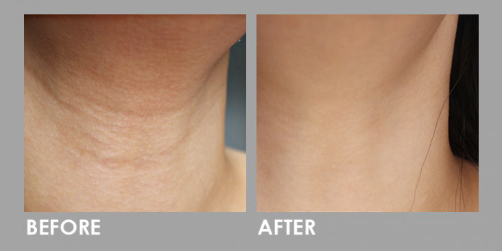 Ultherapy High Intensity Focused Ultrasound