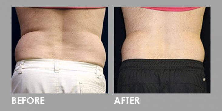Before & After Vanquish Fat Removal Treatment