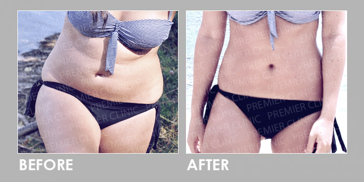 Before & After Oral Weight Loss Slimming Pills