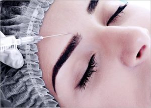 What is Ellanse Dermal Filler