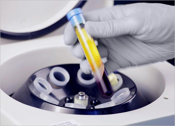 What is Platelet-rich Plasma