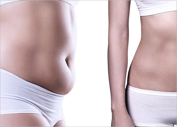 What is Vanquish Fat Reduction Treatment
