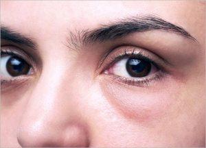 eye bags and dark eye circles