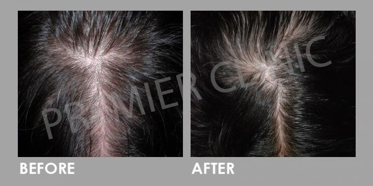 Before & After Hair Filler Gel - Hair Treatment