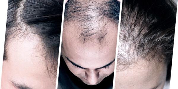 hairloss condition