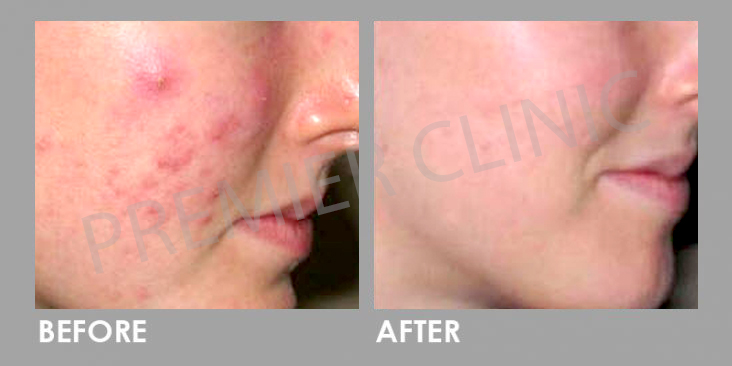 Before & After Microdermabrasion Facial Treatment