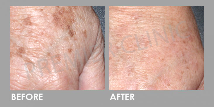 Before & After Q-Switch Nd:YAG Laser