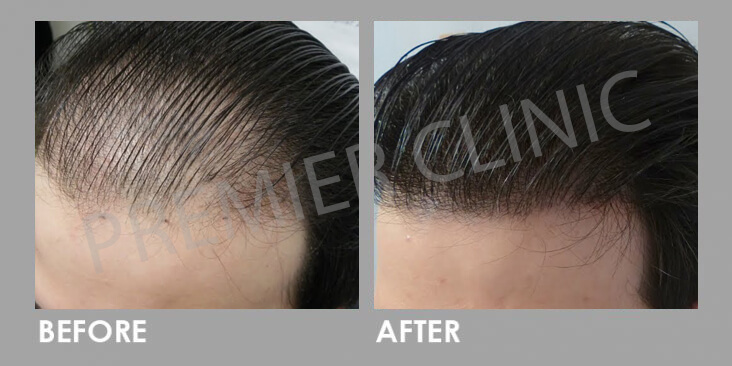 Premier Signature Hair Growth Laser Before After 03
