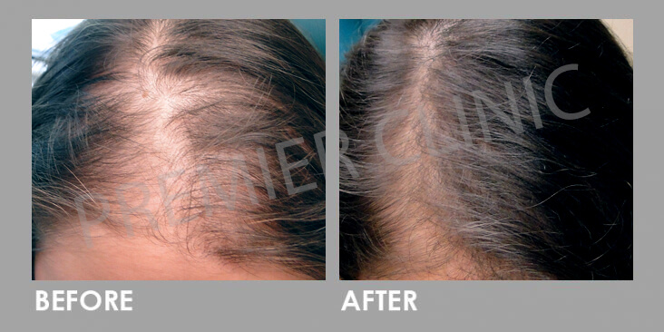 Premier Signature Hair Growth Laser Before After 02
