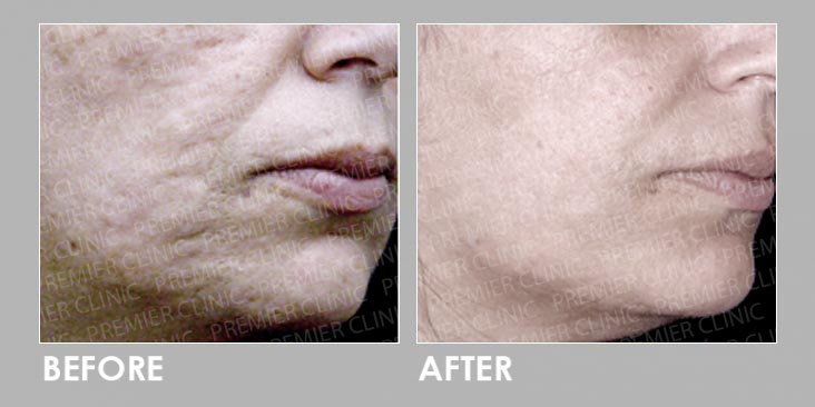 Before & After InnoPlus+
