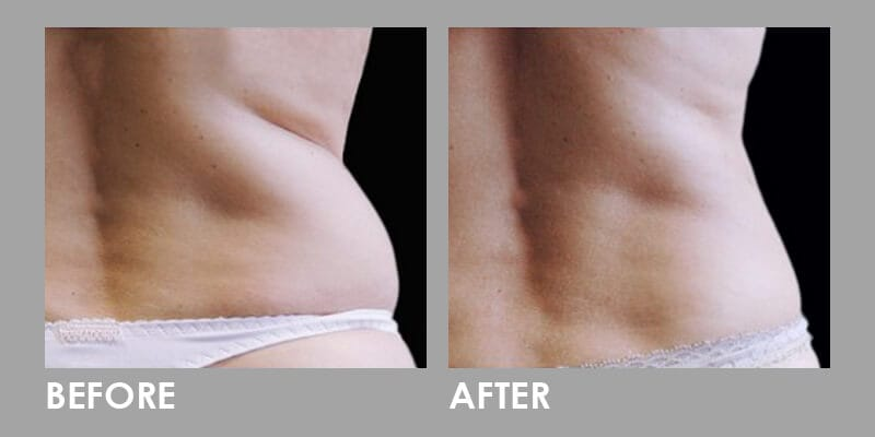 Before & After Premier #1 Weight Loss Solution 01
