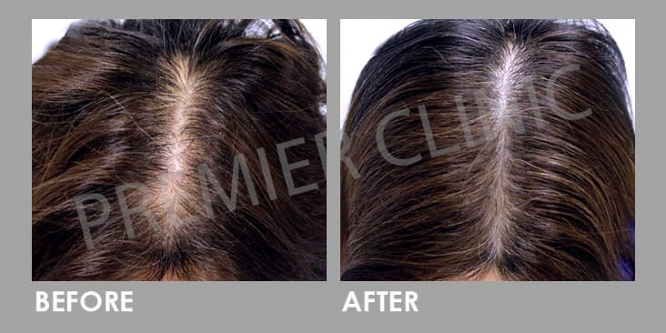 FUE Hair Transplant Before After 01