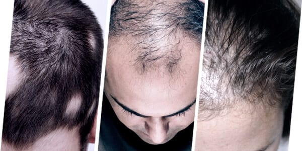 HAIR PRP IS SUITABLE TO TREAT