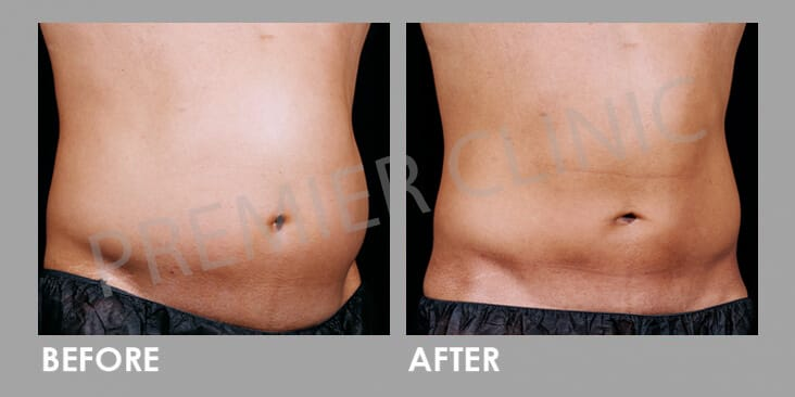 Before & After Premier #1 Weight Loss Solution 02