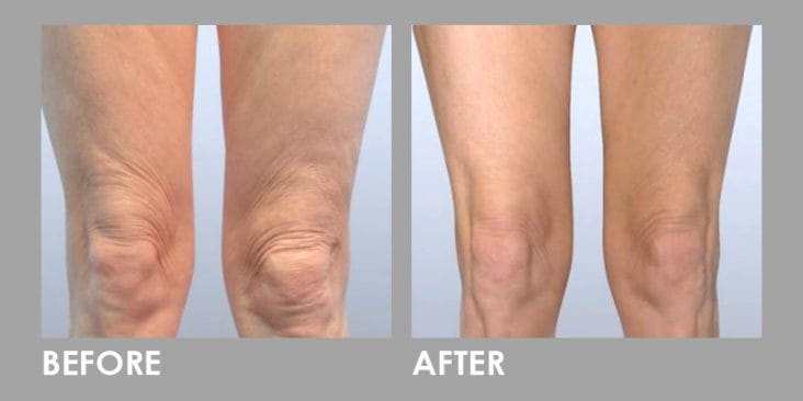 Before & After Thread Lift: Non-surgical Skin Lift