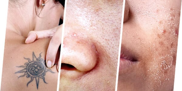 PICO LASER IS SUITABLE TO TREAT