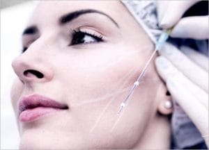 Thread Lift: Non-surgical Skin Lift