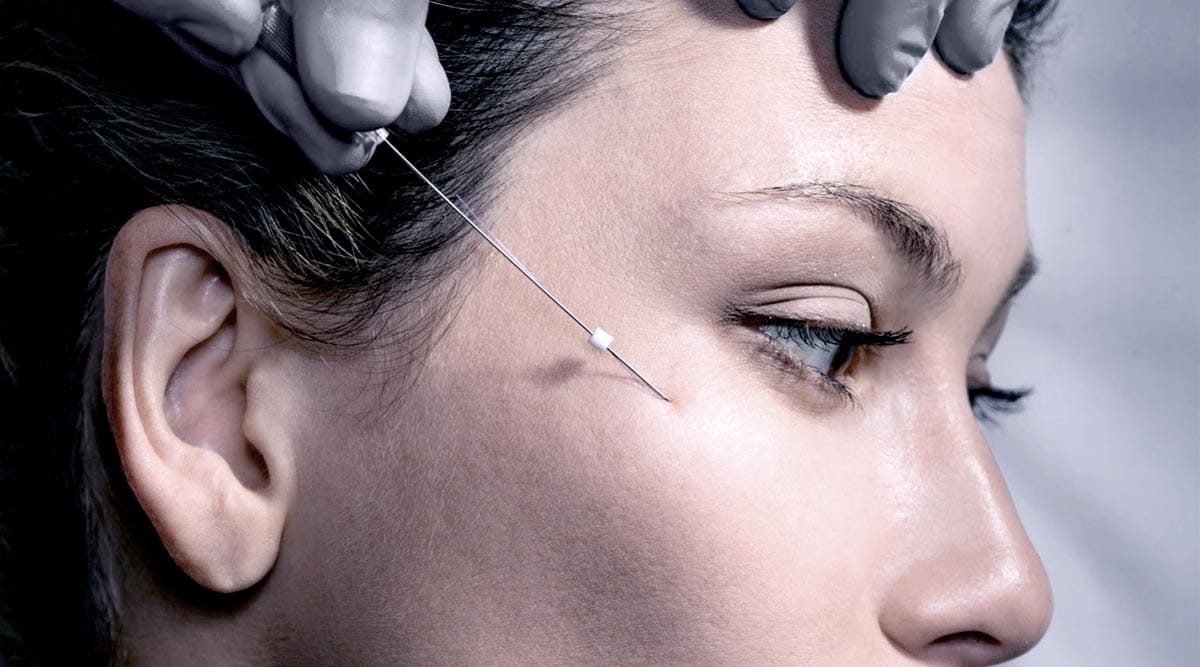 Thread Lift-Non-surgical Skin Lift