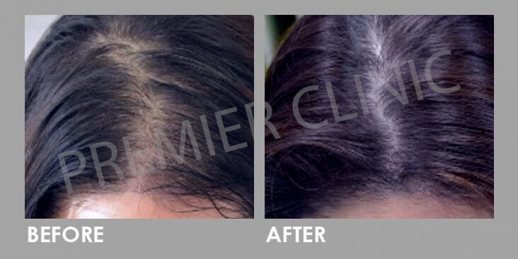 FUE Hair Transplant Before After 03