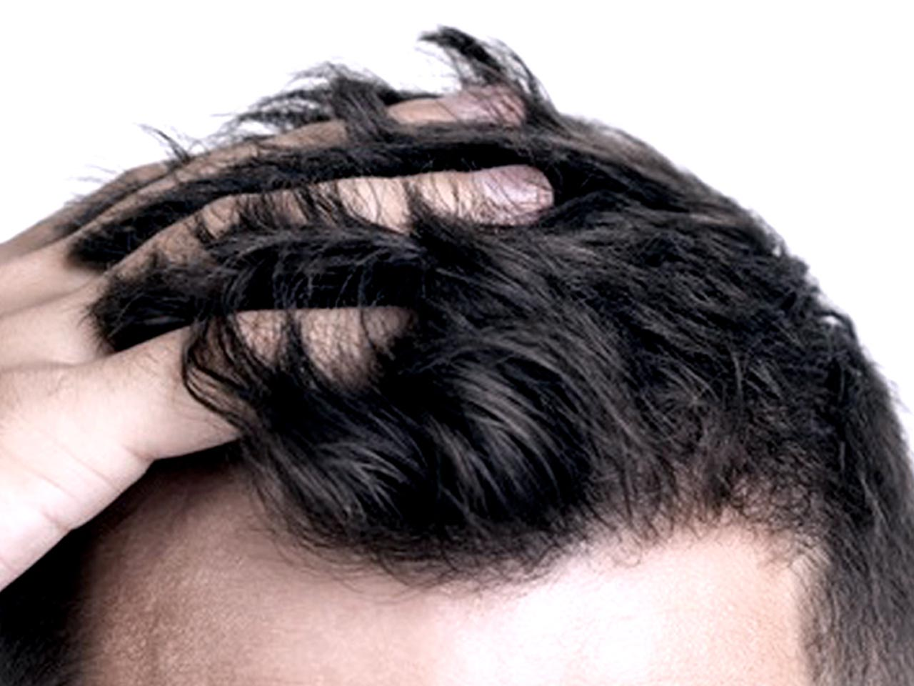 HAIR FILLER INJECTION