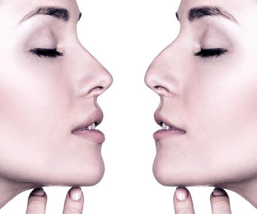 Nose Filler - Natural-Looking Result