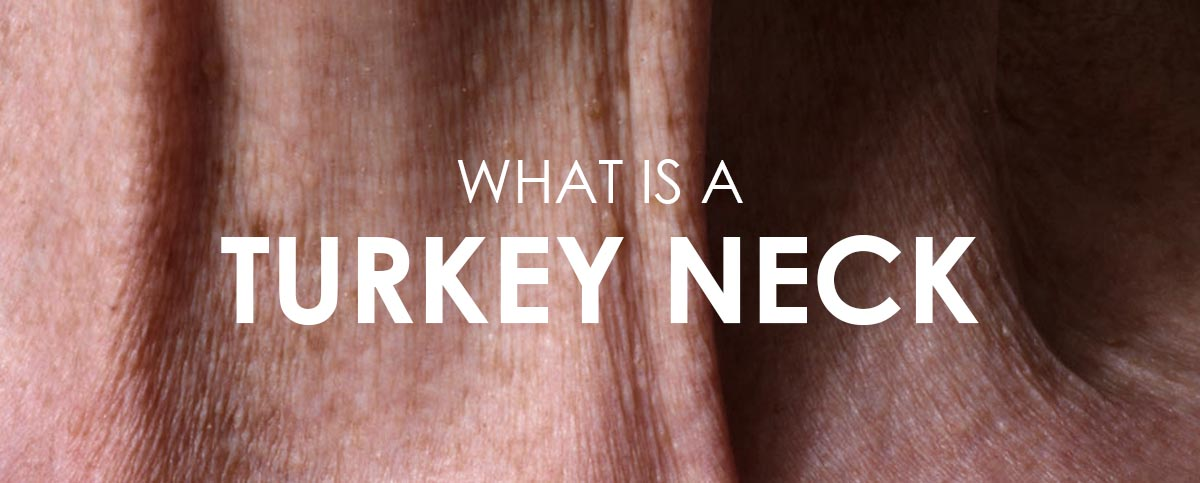 WHAT IS A TURKEY NECK