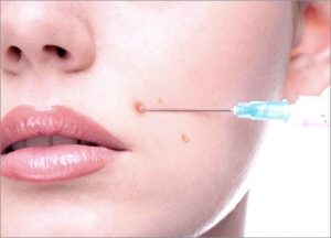 Intralesion Corticosteroid Injection