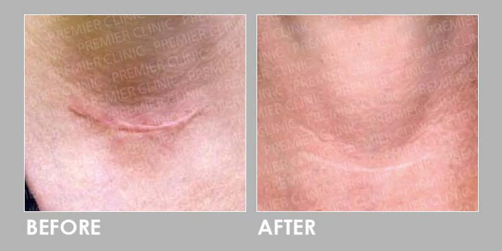 Keloid Laser Treatment Before After