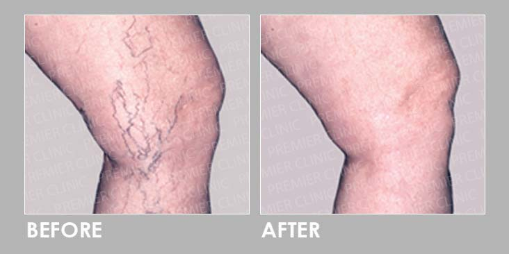 Sclerotherapy Injection Before After