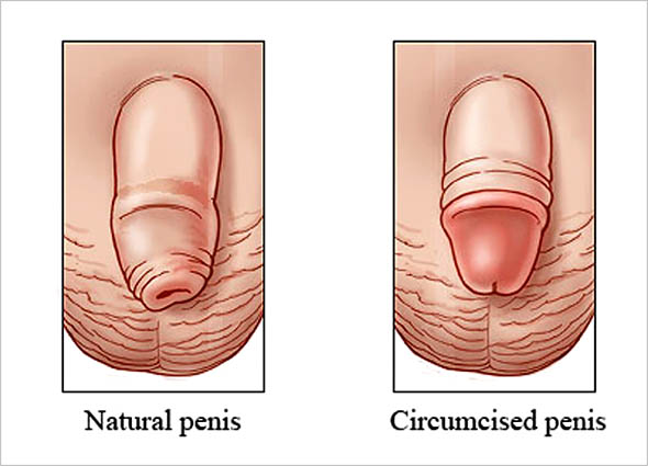 ZSR Circumcision at Premier Clinic