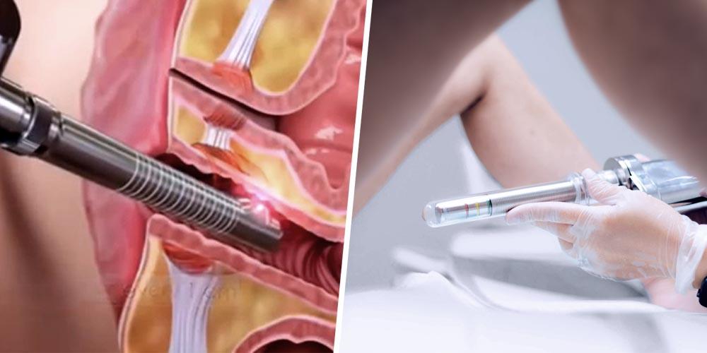 Laser Vagina Tightening